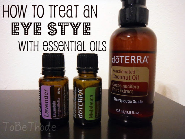 Essential Oils used to naturally help an eye stye